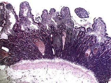 Enteritis linfoplasmocitaria canina