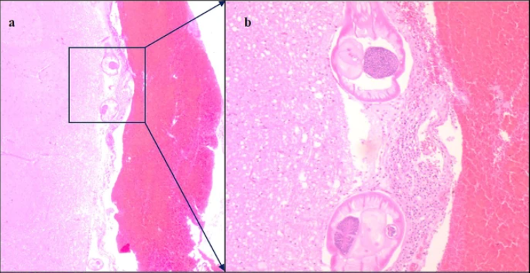 Elafostrongilosis: Una infección por gusano cerebral